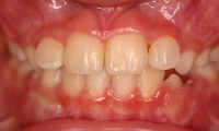 Closeup of young girl's smile after orthodontic treatment