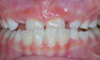 Closeup of young girl's smile before orthodontic treatment
