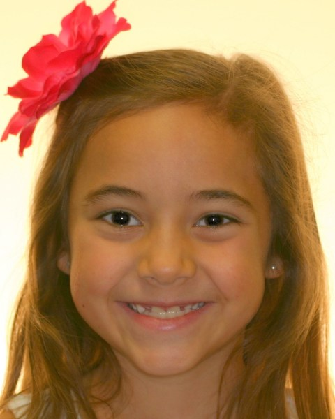 Young girl smiling before orthodontic treatment