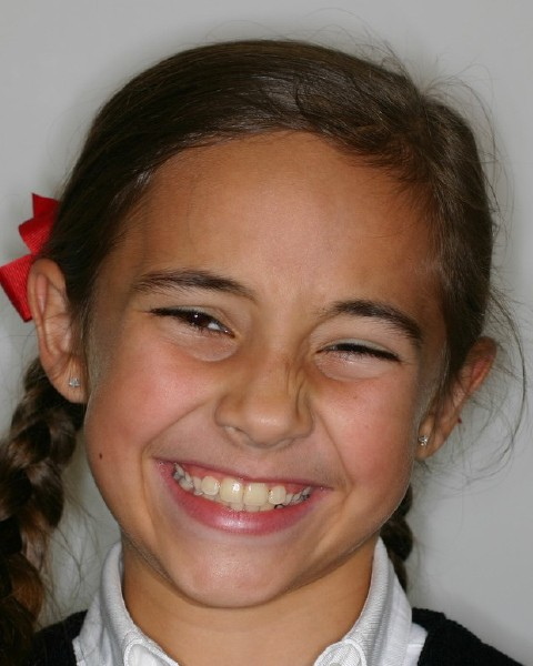 Young girl smiling after orthodontic treatment