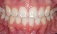 Closeup of preteen girl's smile after orthodontic treatment