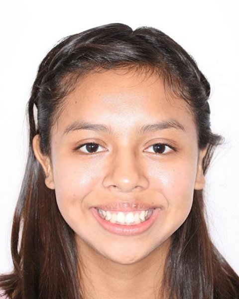 Preteen girl smiling before orthodontic treatment