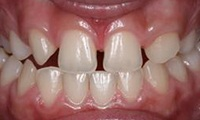 Closeup of teen girl's smile before orthodontic treatment