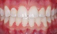 Closeup of teen girl's aligned smile after orthodontic treatment