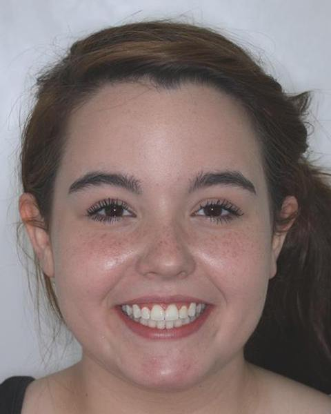 Teen girl with aligned smile after orthodontic treatment