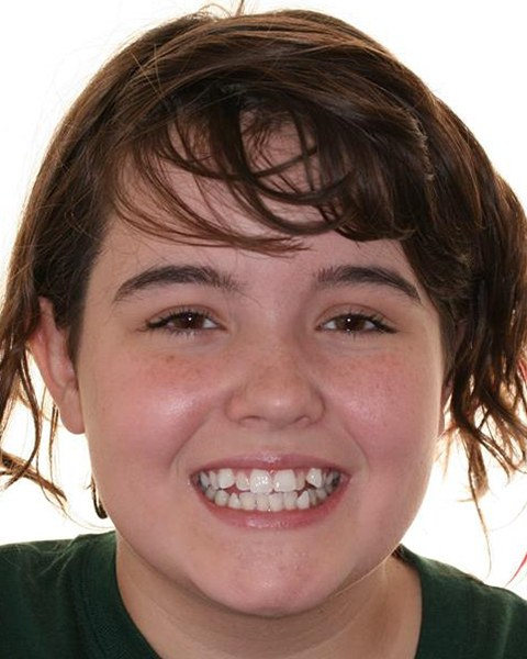 Teen girl with misaligned smile before orthodontic treatment