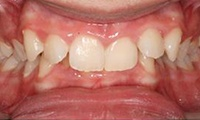 Closeup of teen girl's overbite before orthodontic treatment
