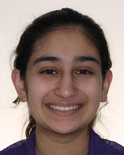 Teen girl with corrected bite after orthodontic treatment