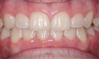 Closeup of young female patient's smile after orthodontic treatment
