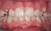 Closeup of young female patient's smile before orthodontic treatment