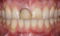 Closeup of teen girl's damaged and misaligned smile before orthodontic treatment