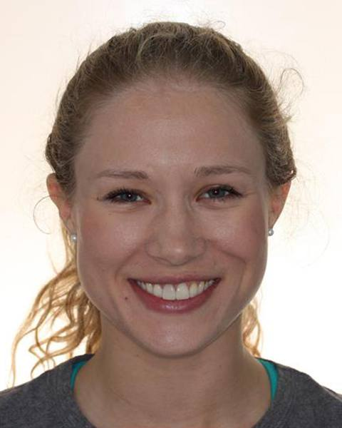 Teen girl healthy aligned smile after orthodontic treatment