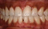 Closeup of adult patient's smile after orthodontic treatment