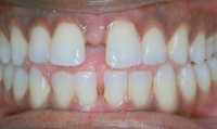 Closeup of adult patient's smile before orthodontic treatment