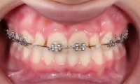 Closeup of young girl's smile with phase one orthodontics