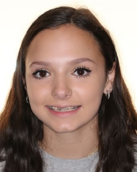 Young girl with phase one orthodontics