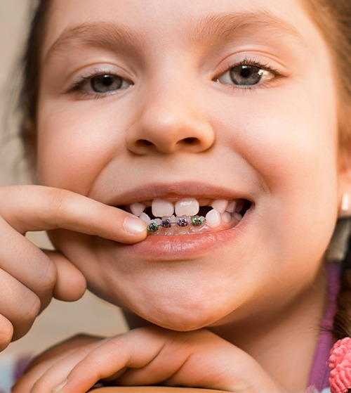 Child pointing to phase one pediatric orthodontics appliance on her teeth