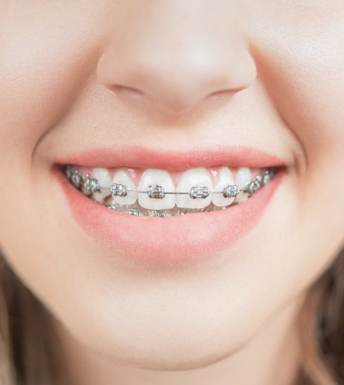 Closeup of smile with customizable brackets
